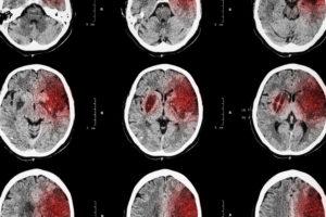 Missed Brain Hemorrhage