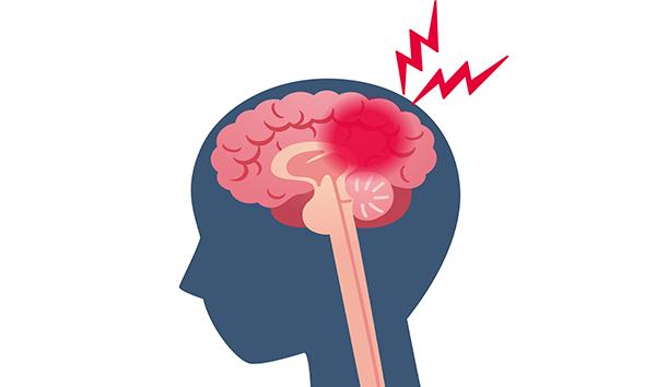 Brain Bleed Injuries